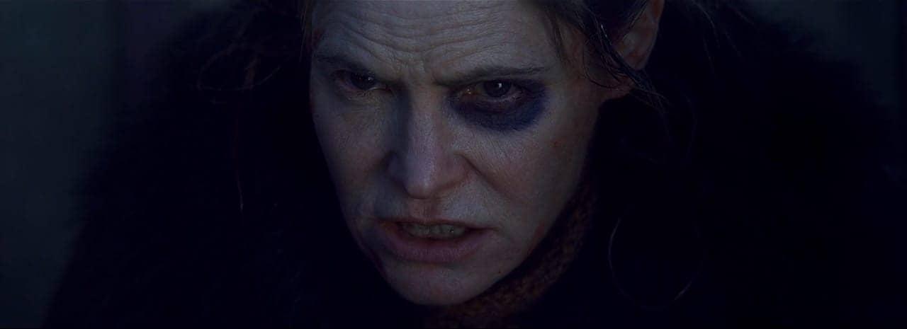 close de mulher com olho roxo e muita raiva